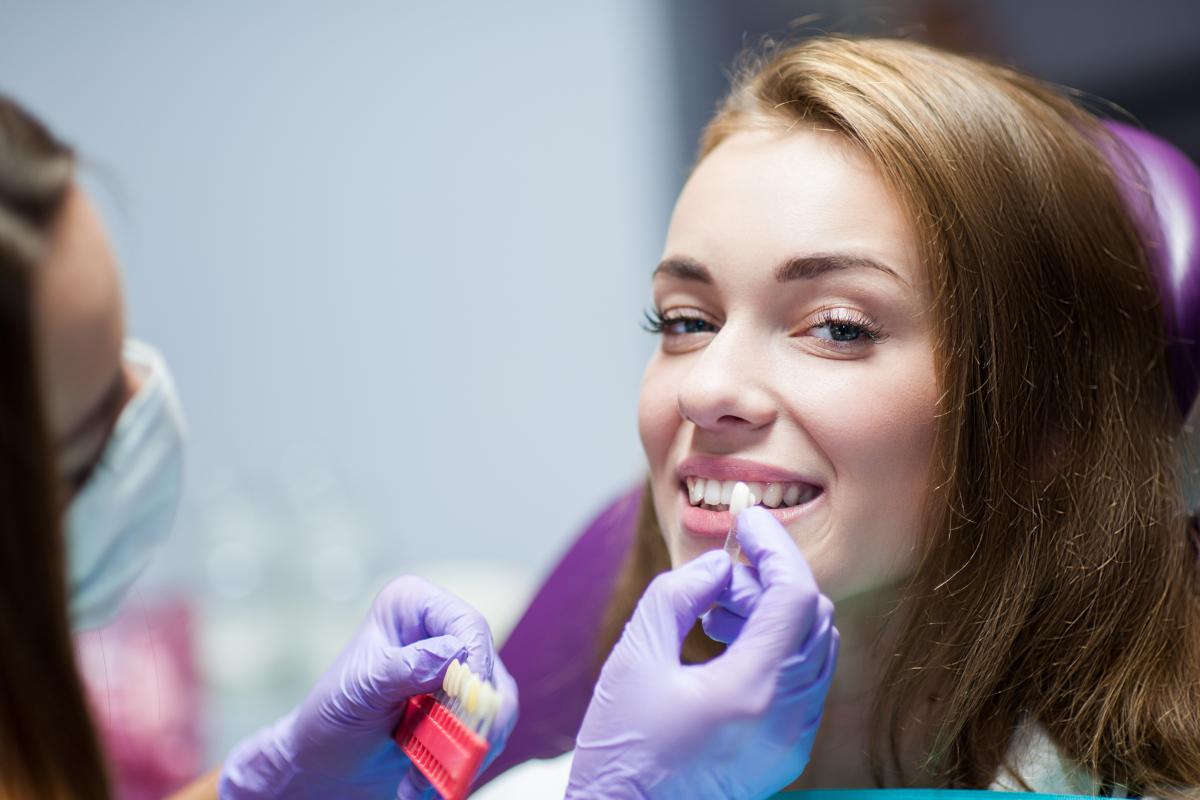 Поставяне на зъбни фасети