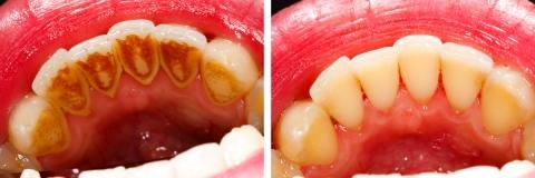 Изчистване на зъбен камък