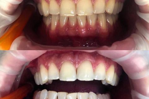 Избелване на всички зъби