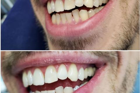 Лазерно избелване на горни и долни зъби