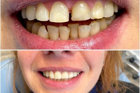 Подреждане на зъби
